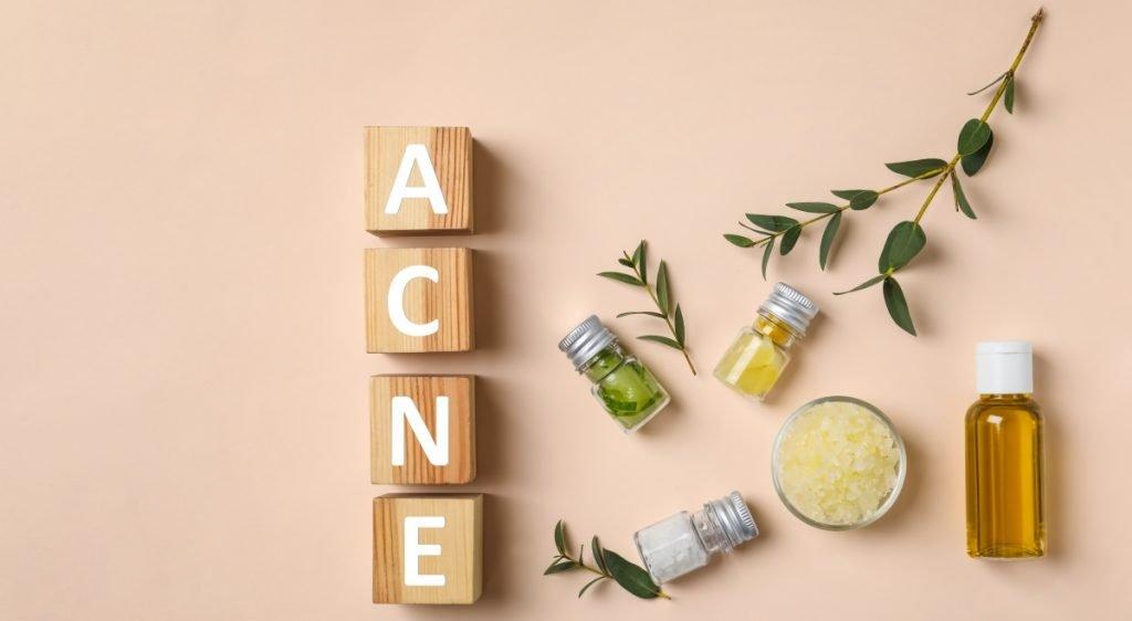 acne sebacia middelen
